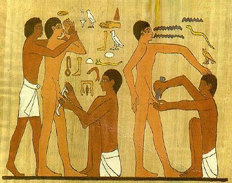 Male Circumcision Ancient Egypt Dr Nazir Diuana